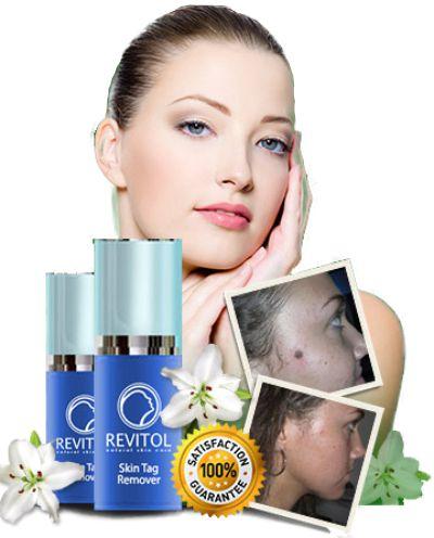 Buy Revitol Skin Tag Remover