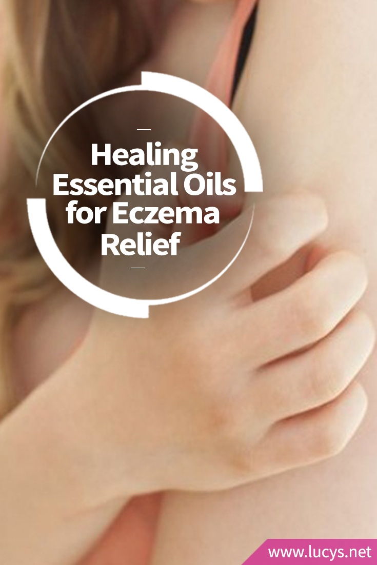 5 Healing Essential Oils for Fast Relief From Eczema and Skin Rashes