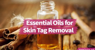 6 Essential Oils That Will Help You Evict Your Unwelcome Skin Tags