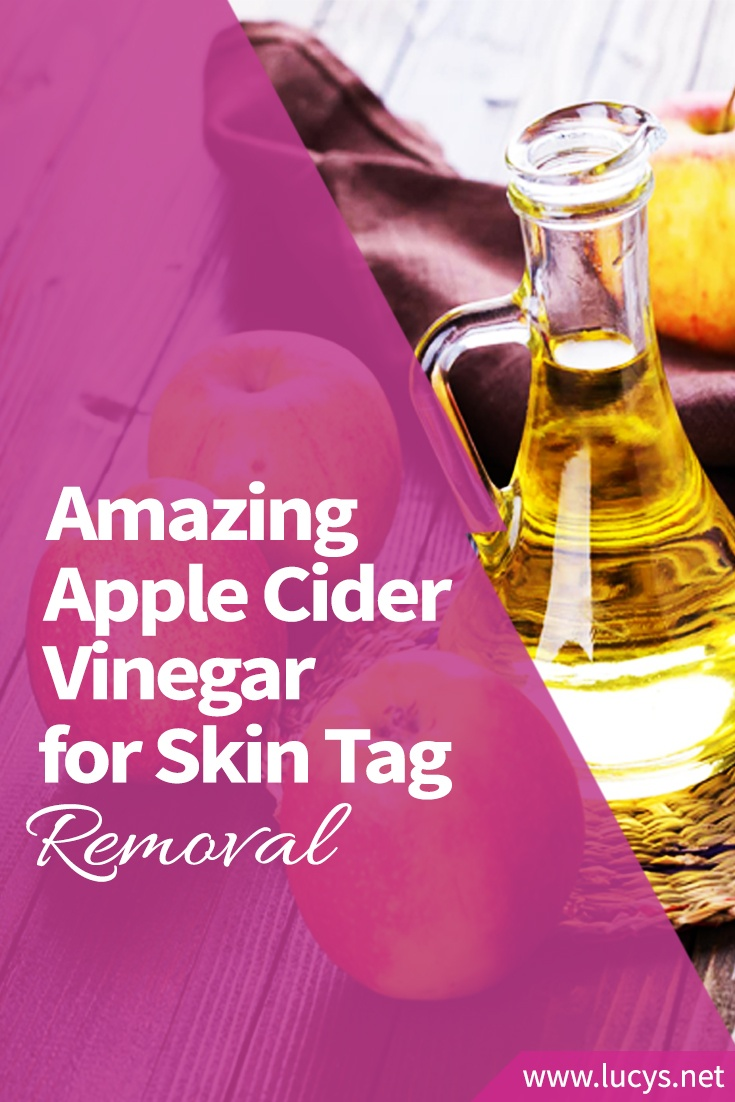How to Use Amazing Apple Cider Vinegar for Skin Tag Removal