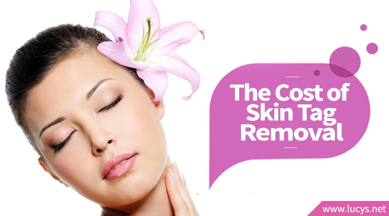 What Is The Cost Of Skin Tag Removal Medical Otc Home Remedies