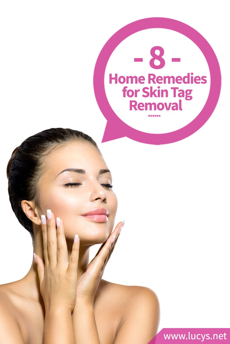 8 Home Remedies for Skin Tag Removal